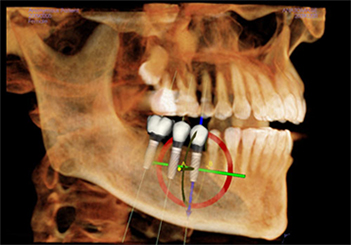 implant-planning2