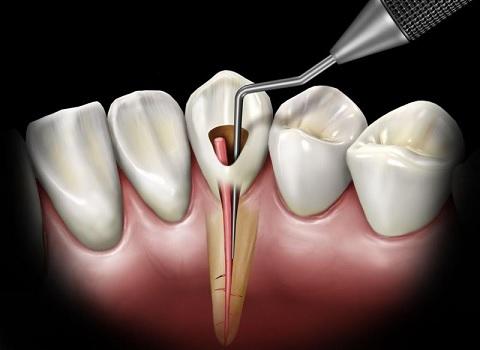 Leczenie kanałowe dentysta szczecin