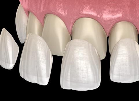 Licówki Dentysta Szczecin