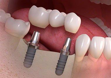 Most Dentysta Szczecin