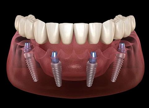 Protezy na implantach Implanty Szczecin