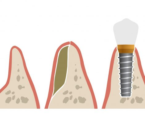bone_grafting_Illustration2